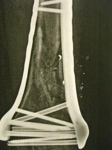 Dean's Lang femur after the second surgery.